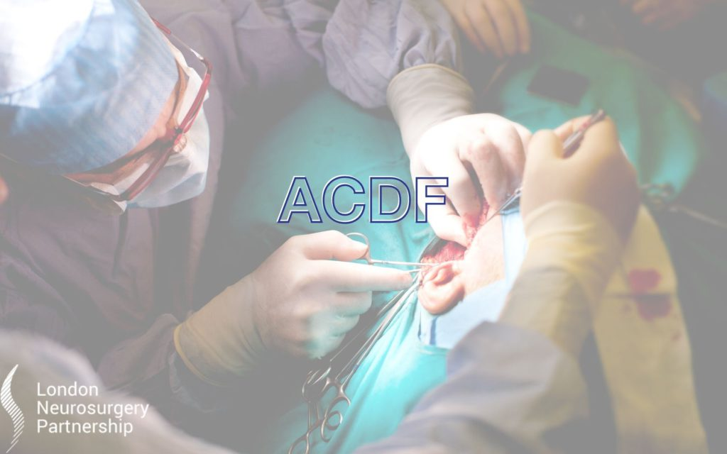 ACDF london neurosurgery partnership