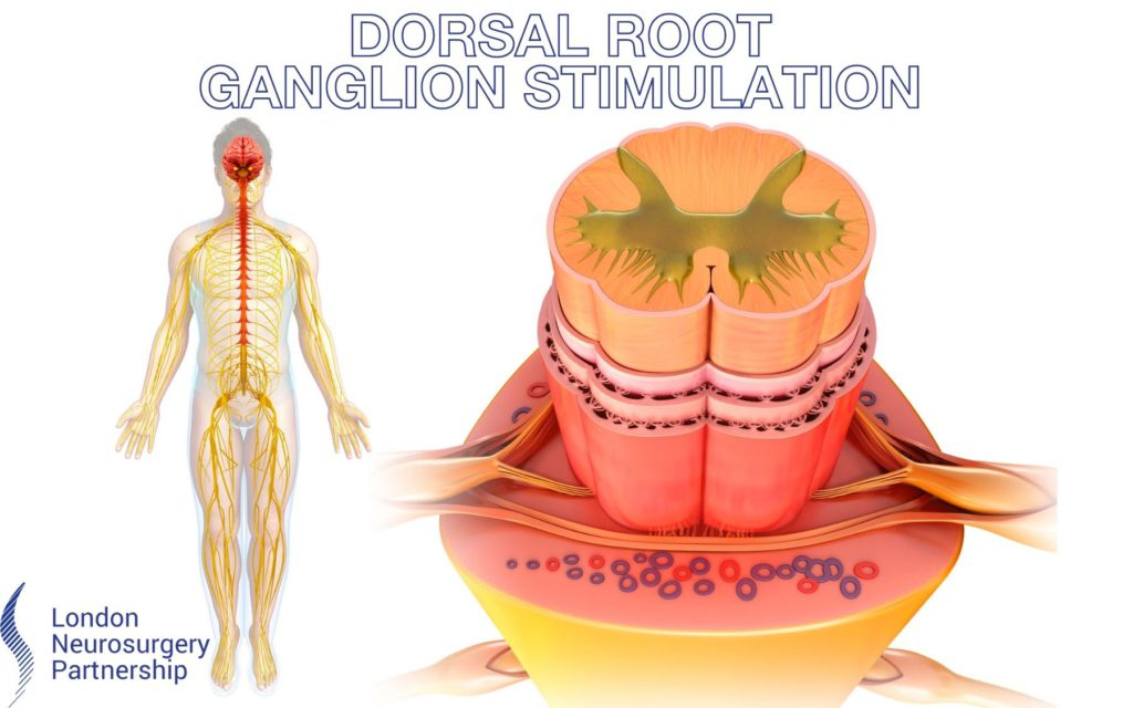 dorsal root ganglion stimulation