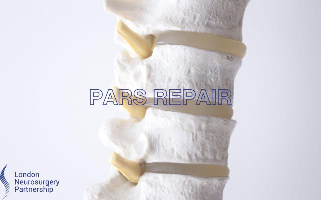 Pars repair
