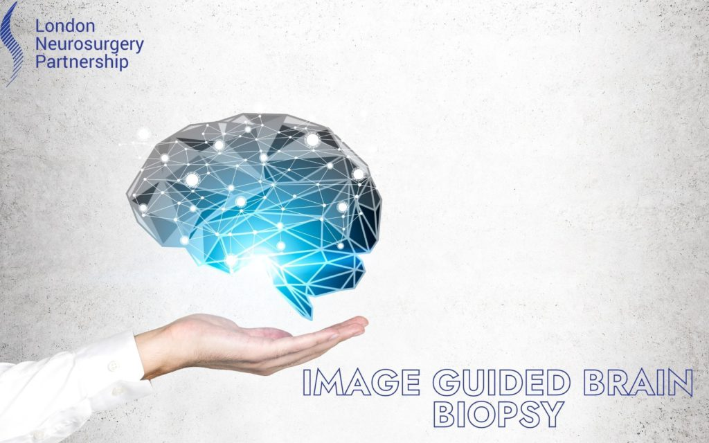 image guided brain biopsy