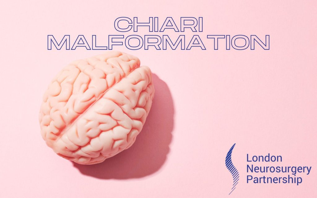 chiari malformation london neurosurgery partnership