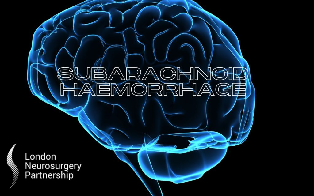 subarachnoid haemorrhage london neurosurgery partnership