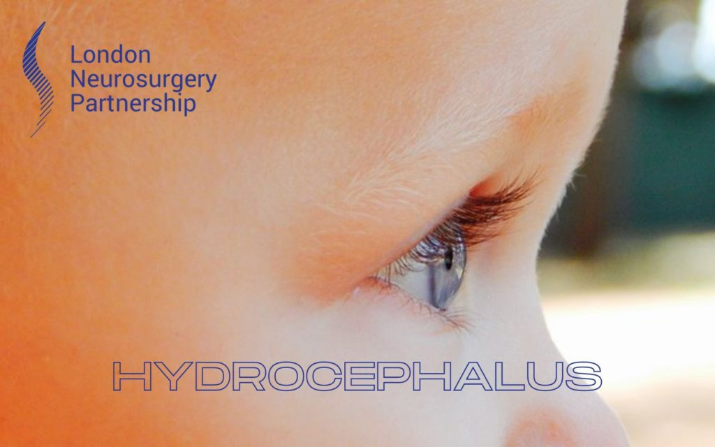 Hydrocephalus london neurosurgery partnership