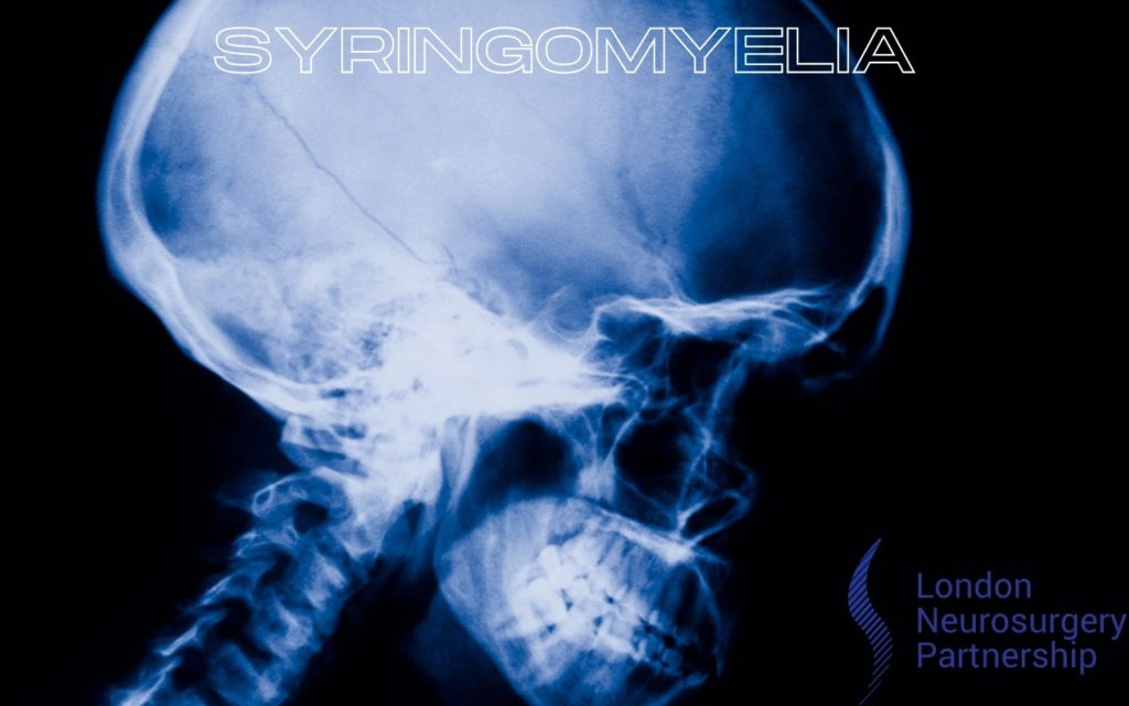 syringomyelia london neurosurgery partnership
