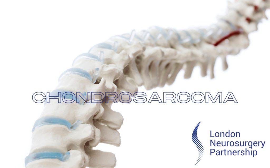 chondrosarcoma london neurosurgery partnership