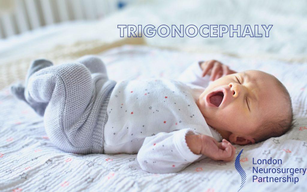 trigonocephaly