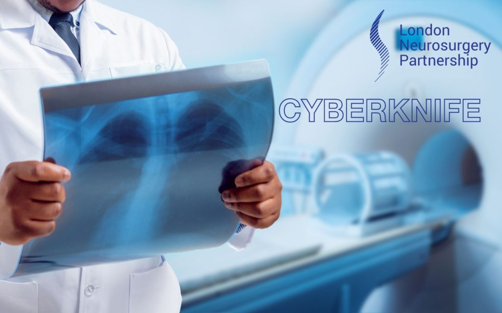 CyberKnife london neurosurgery partnership