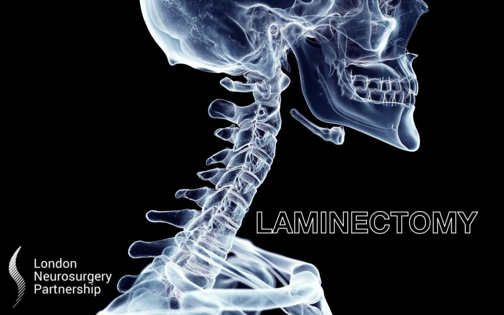 laminectomy london neurosurgery partnership