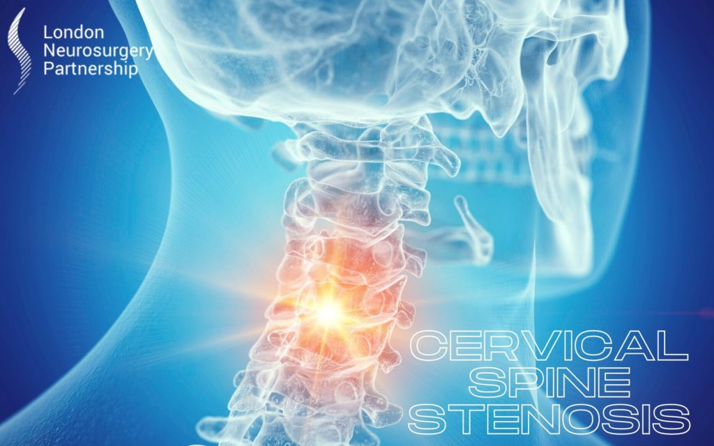 cervical spine stenosis london neurosurgery partnership