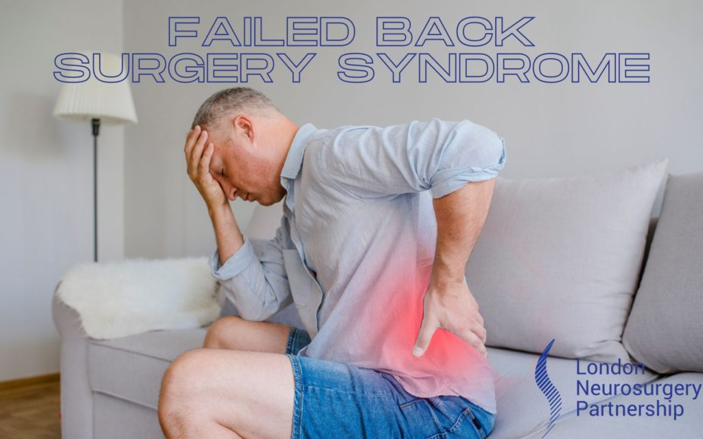 failed back surgery syndrom london neurosurgery partnership