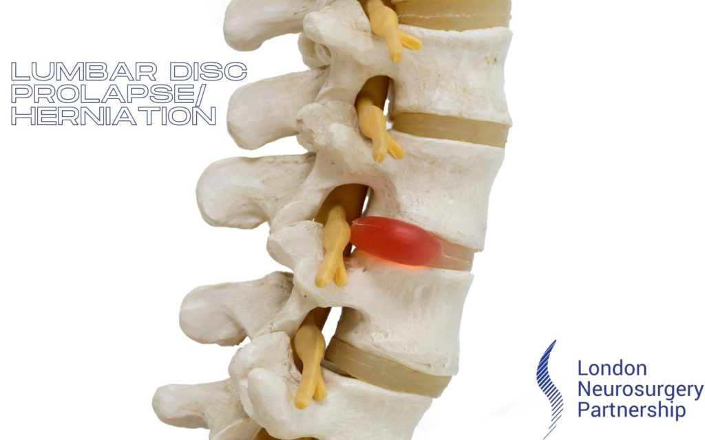 Lumbar disc herniation london neurosurgery partnership