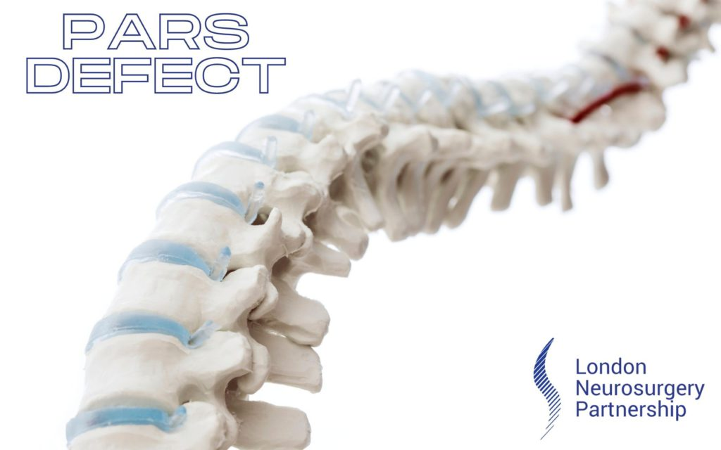pars defect london neurosurgery partnership