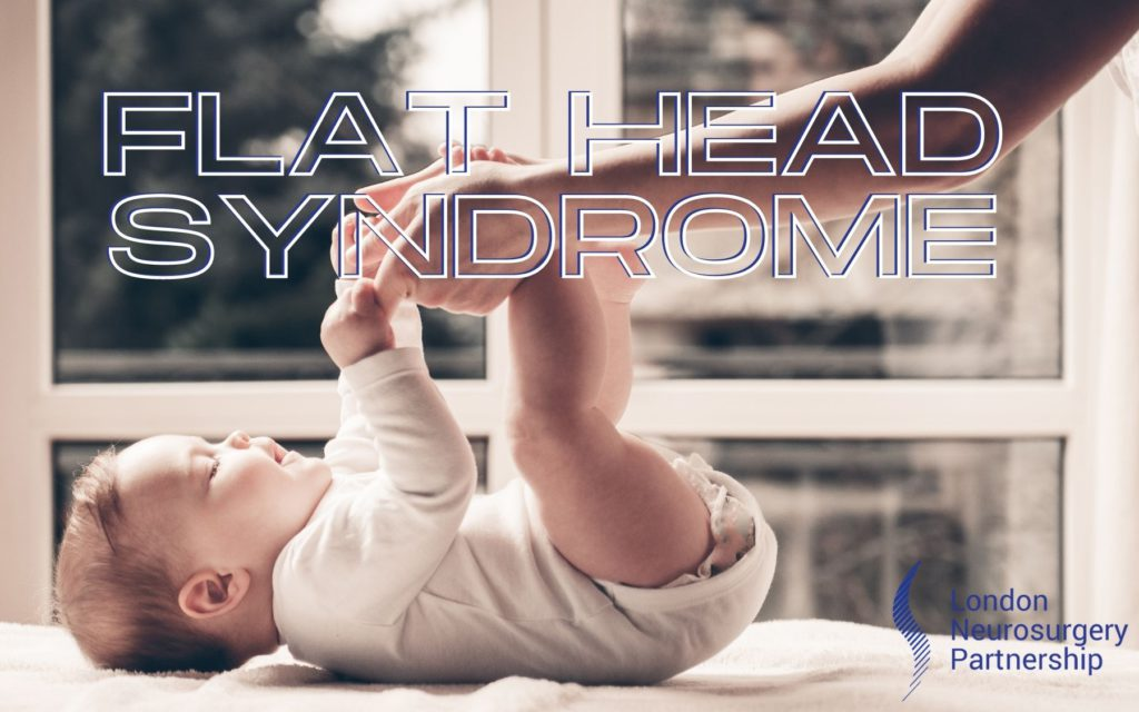 flat head syndrome london neurosurgery partnership