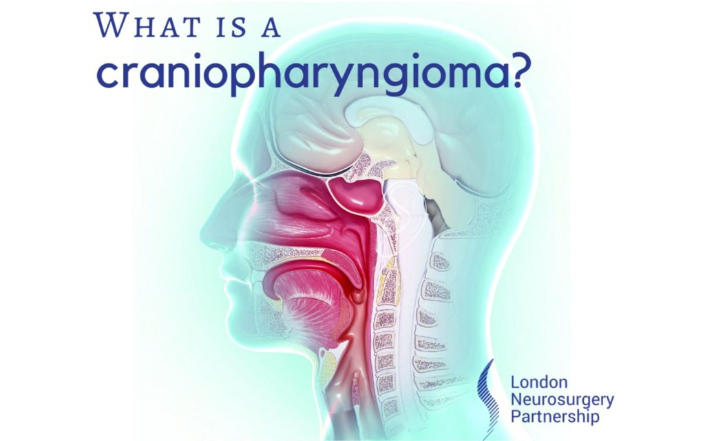 craniopharyngioma london neurosurgery partnership