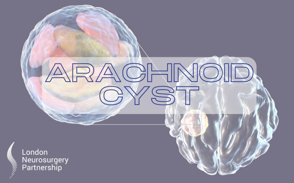 arachnoid cyst london neurosurgery partnership