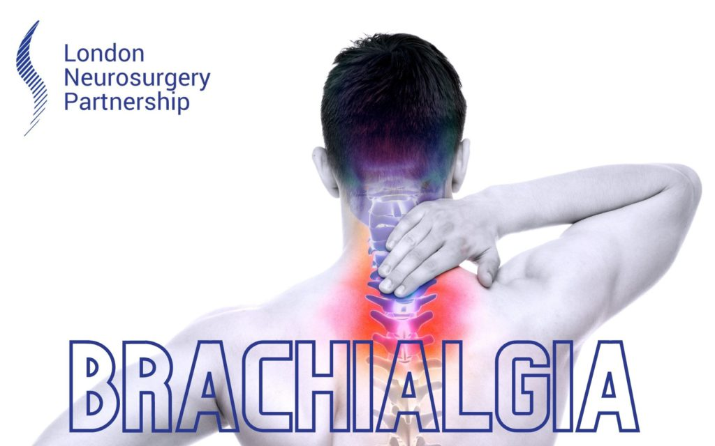 brachialgia london neurosurgery partnership