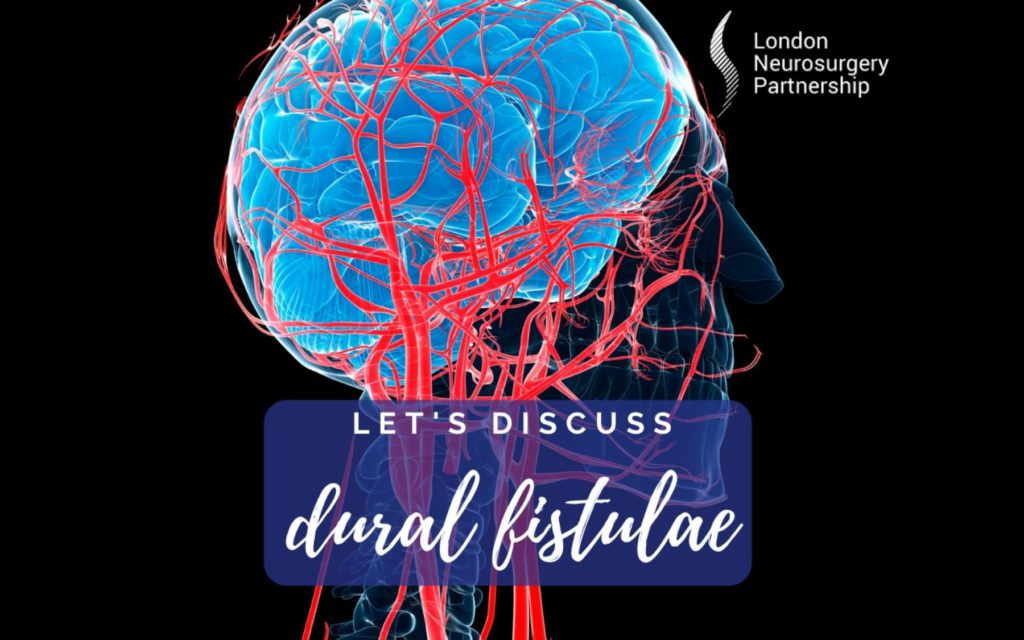 Dural fistula london neurosurgery partnership