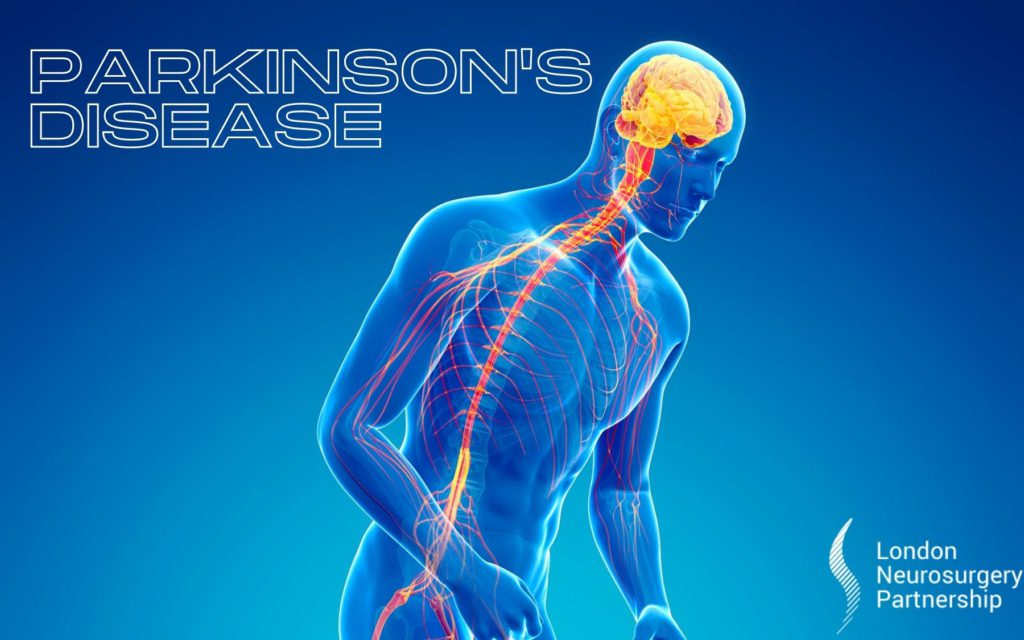 parkinsons disease london neurosurgery partnership