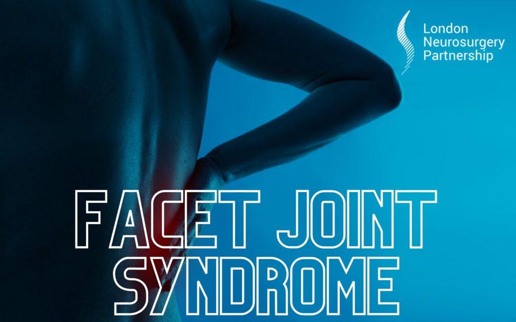 facet joint syndrome london neurosurgery partnership