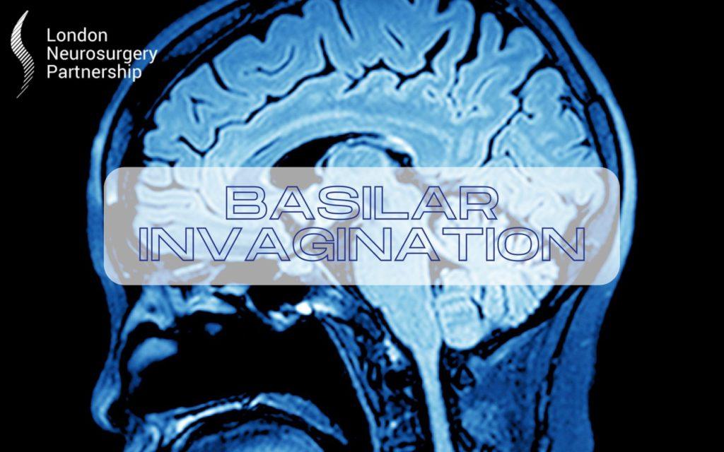 basilar invagination london neurosurgery partnership
