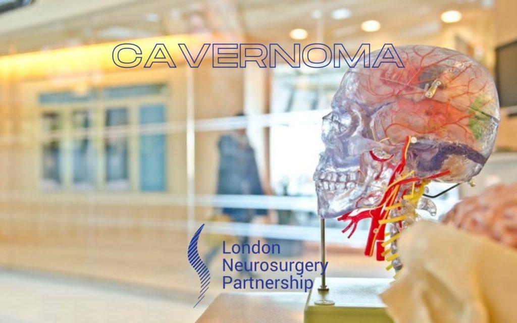 cavernoma london neurosurgery partnership