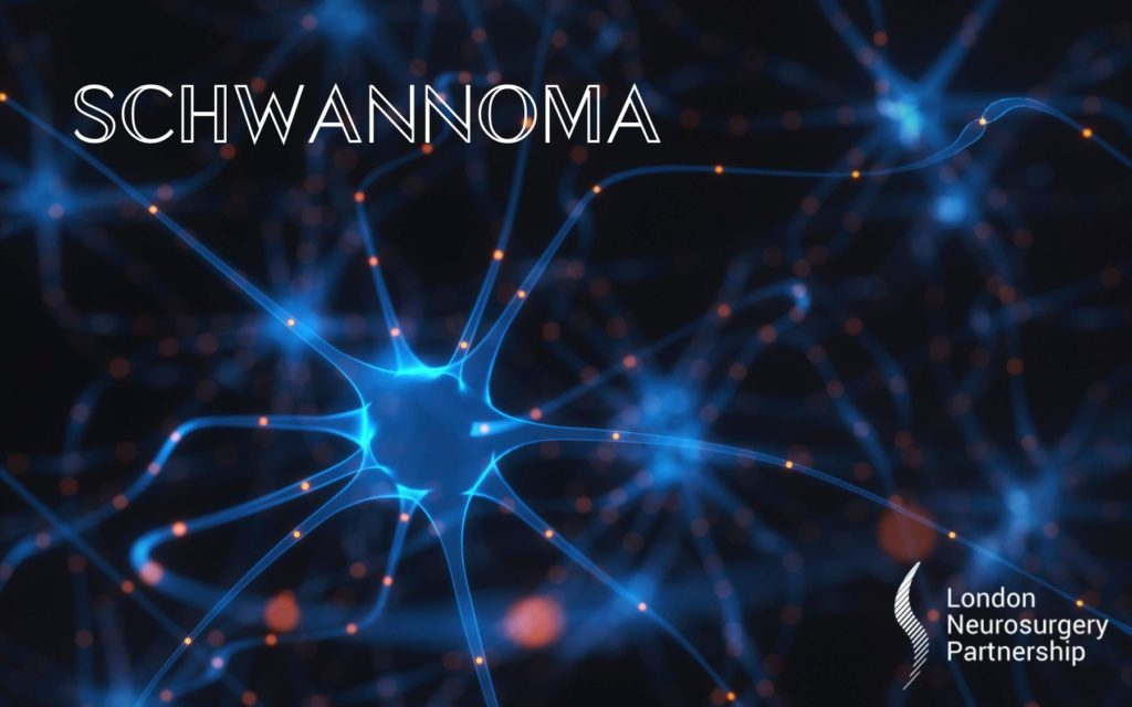 schwannoma london neurosurgery partnership