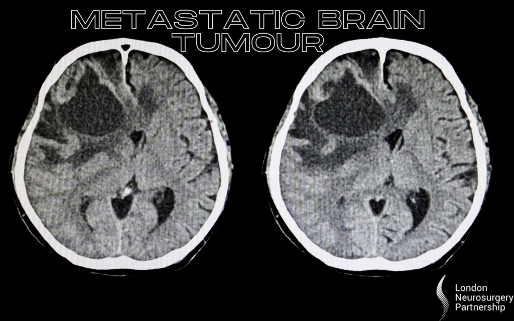 metastatic brain tumour