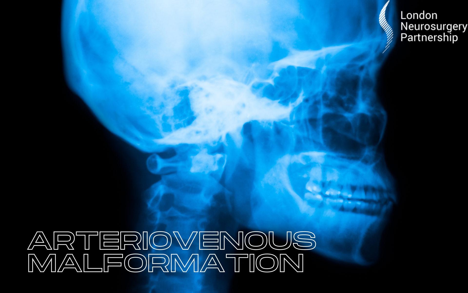 AVM Arteriovenous malformation