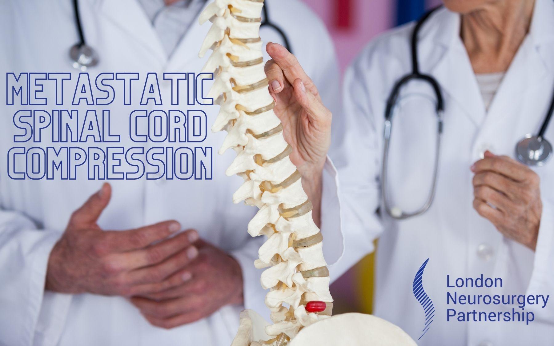 Metastatic spinal cord compression lnp