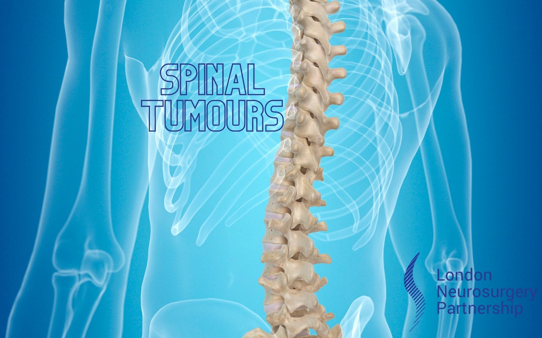 LNP spinal tumours