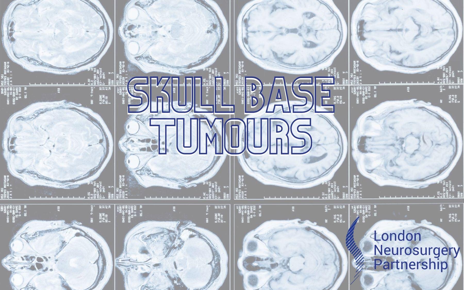 skull base tumours