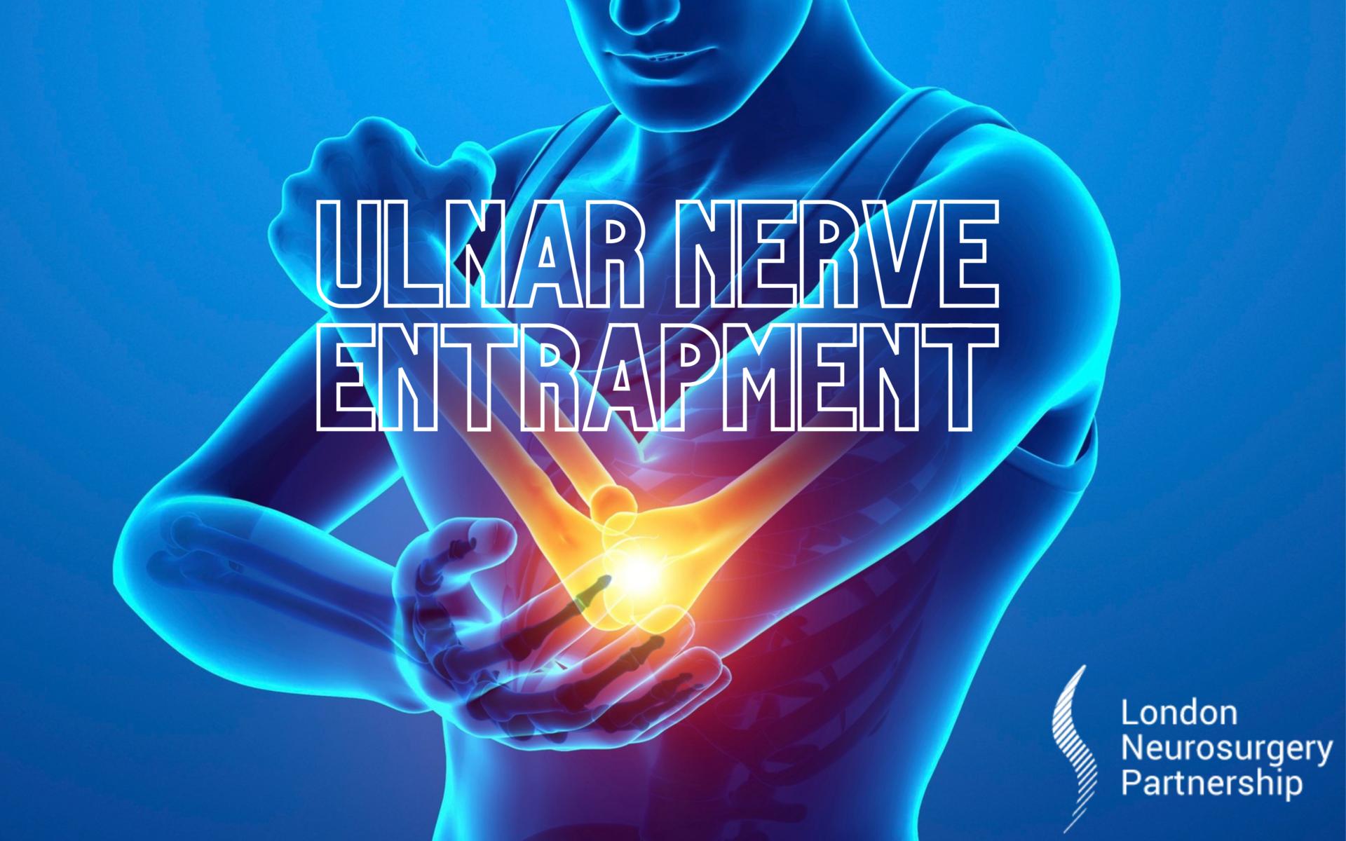 ulnar nerve entrapment