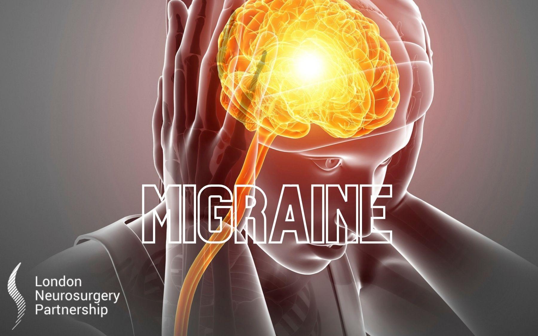migraine london neurosurgery partnership