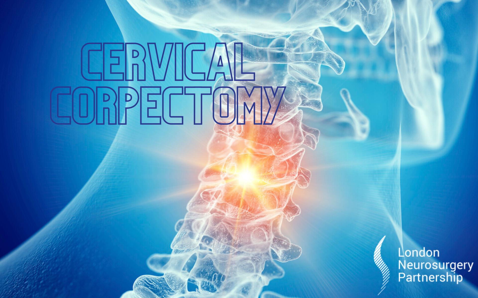 cervical corpectomy