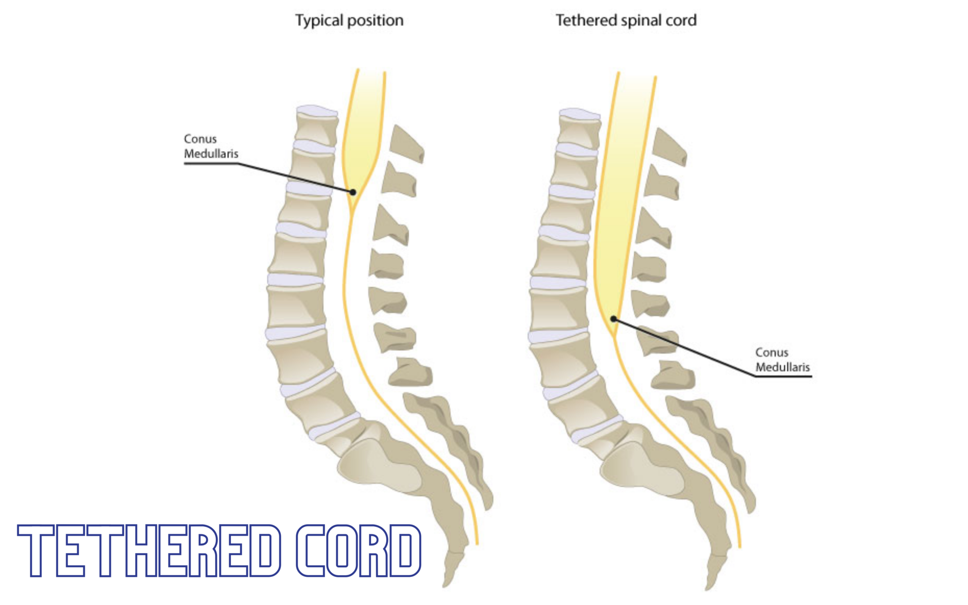 Tethered Cord – condition and symptoms