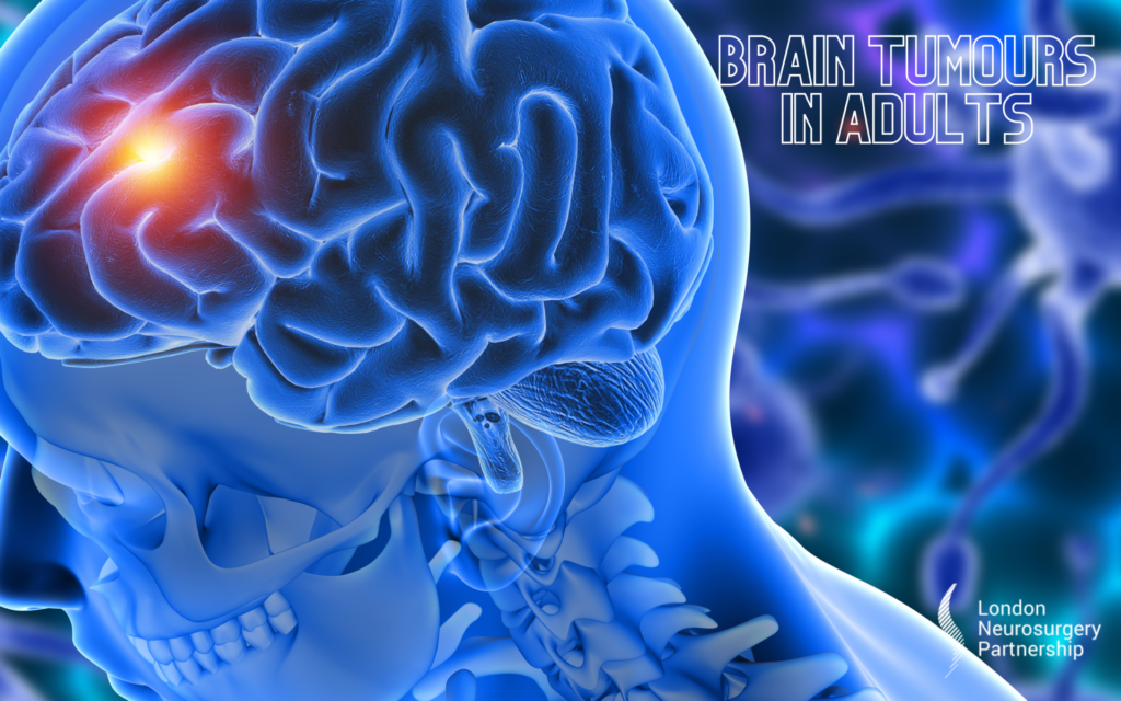Brain tumours in adults