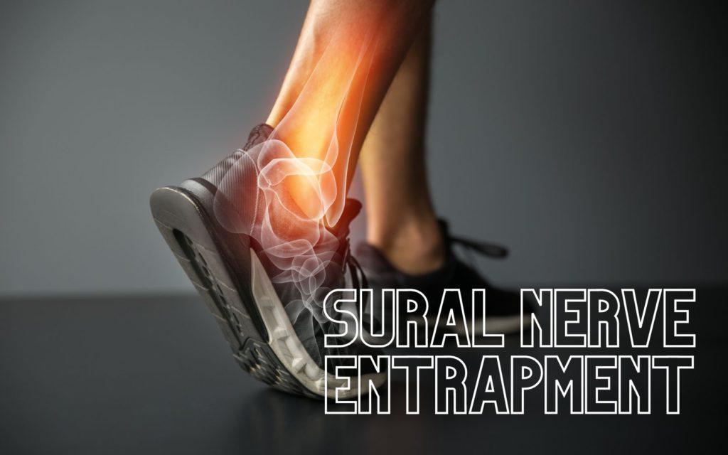 sural nerve entrapment