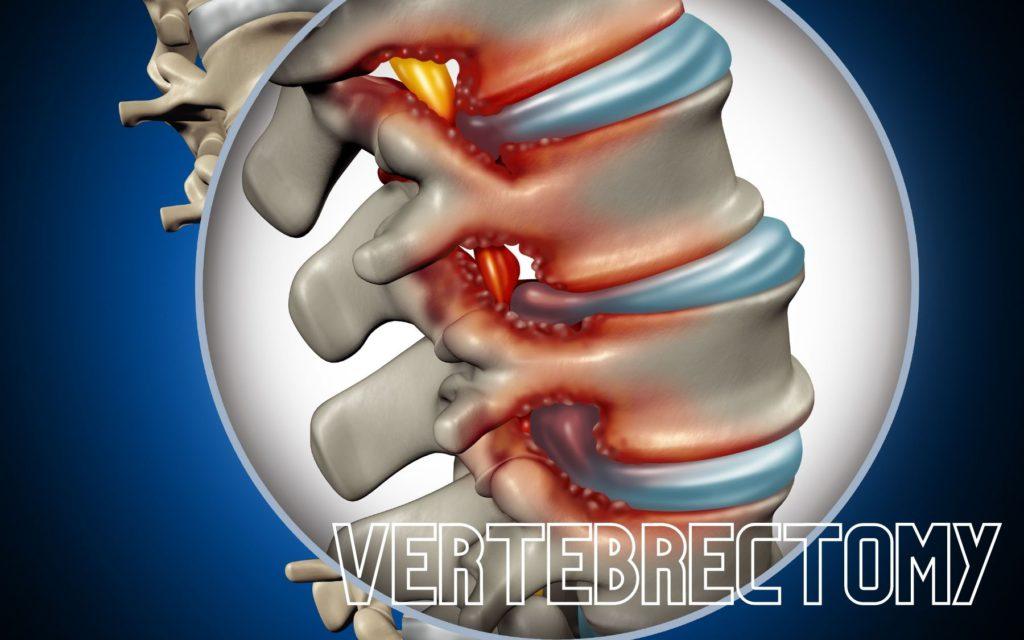 Vertebrectomy