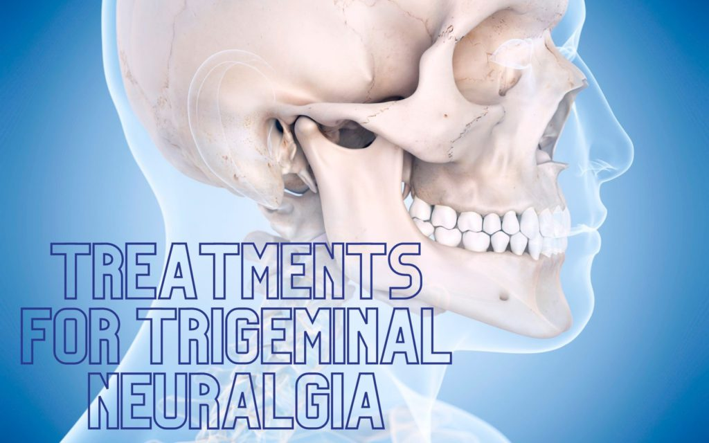 treatments for trigeminal neuralgia