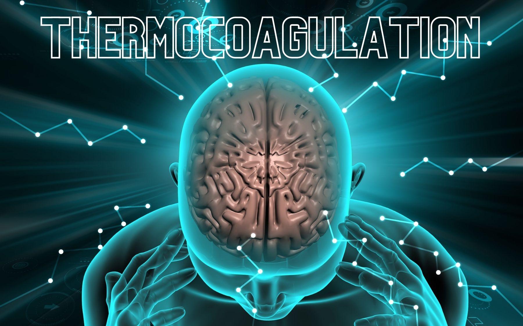 Thermocoagulation