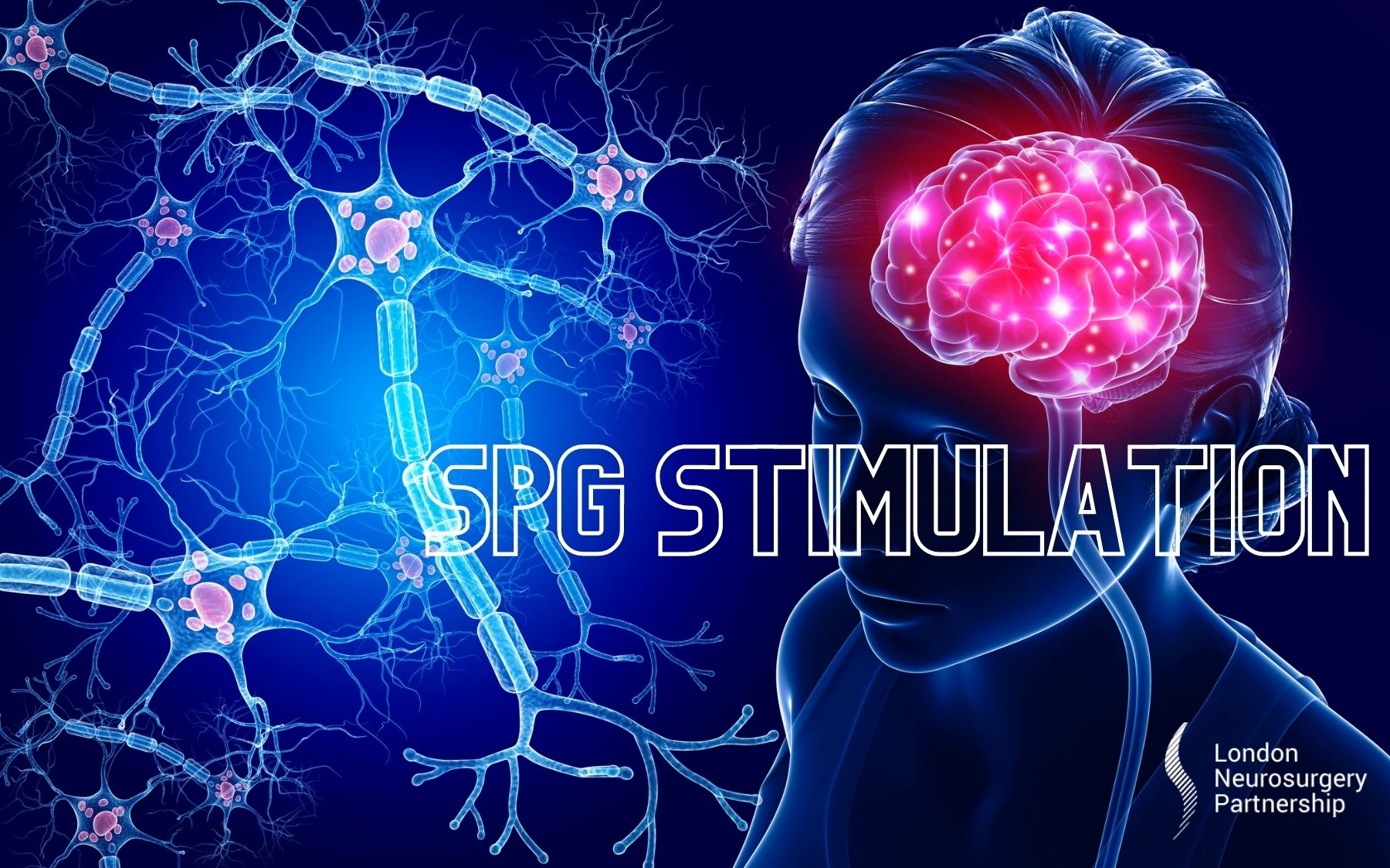 SPG stimulation